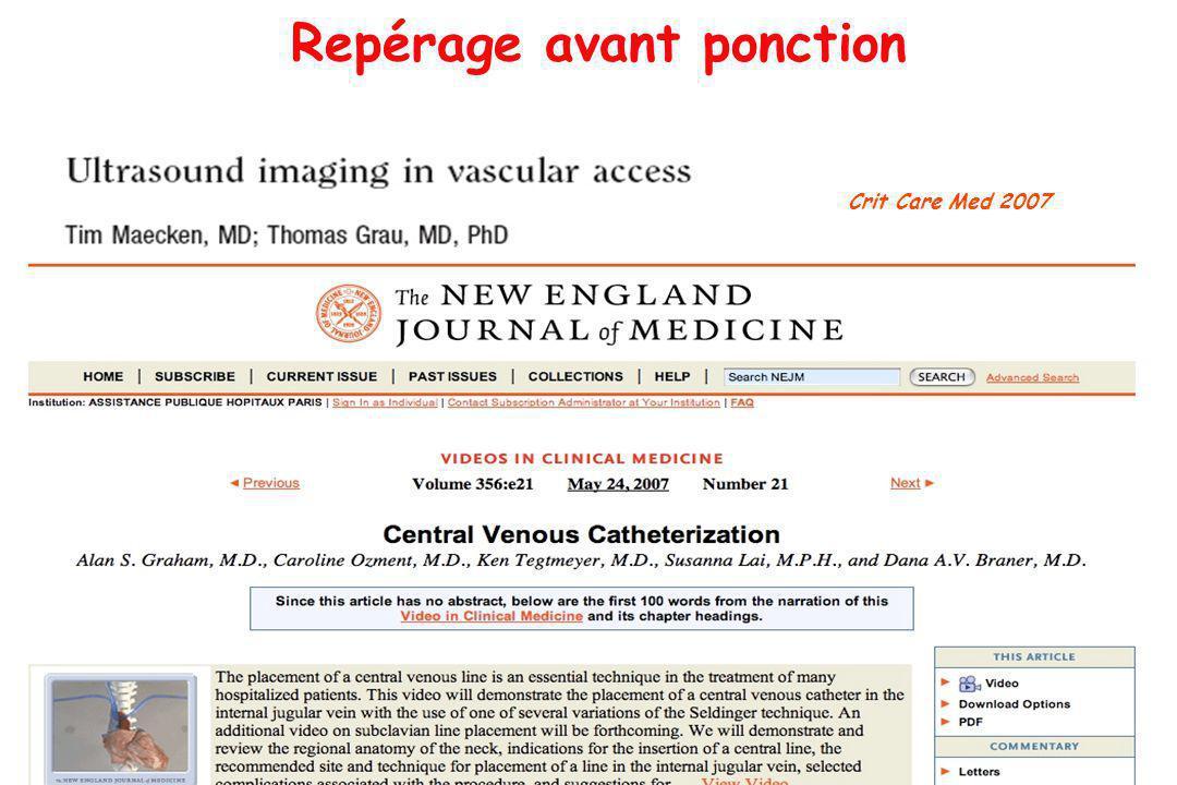 Repérage avant ponction Crit Care Med 2007 NEJM, 2007