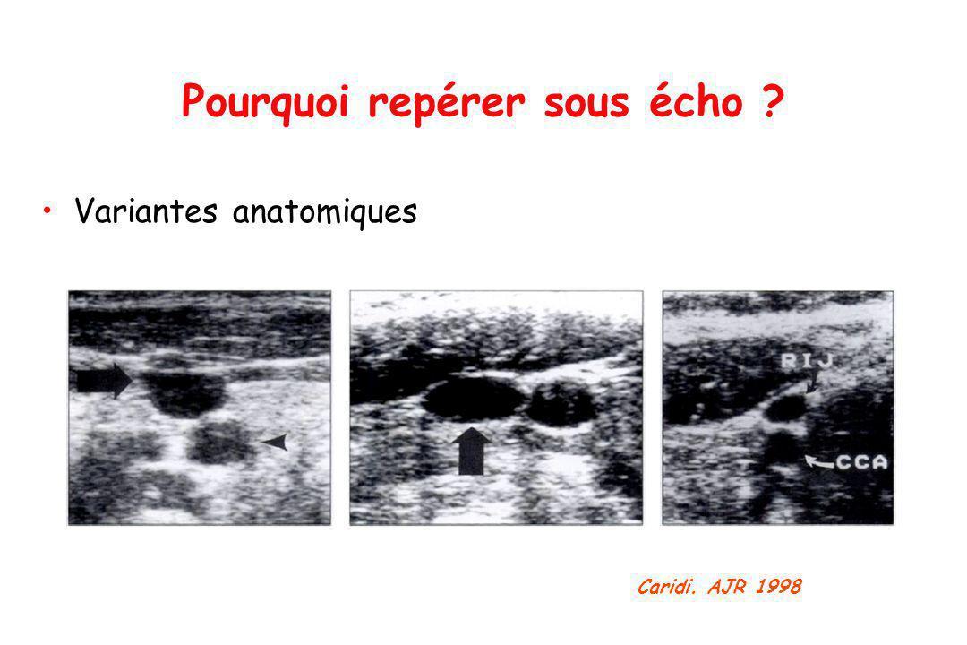 Variantes anatomiques Pourquoi repérer sous écho ? Caridi. AJR 1998