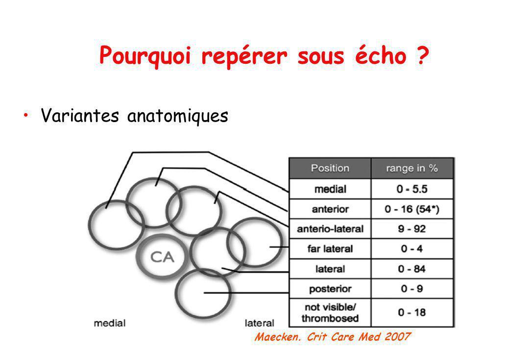 Variantes anatomiques Pourquoi repérer sous écho ? Maecken. Crit Care Med 2007
