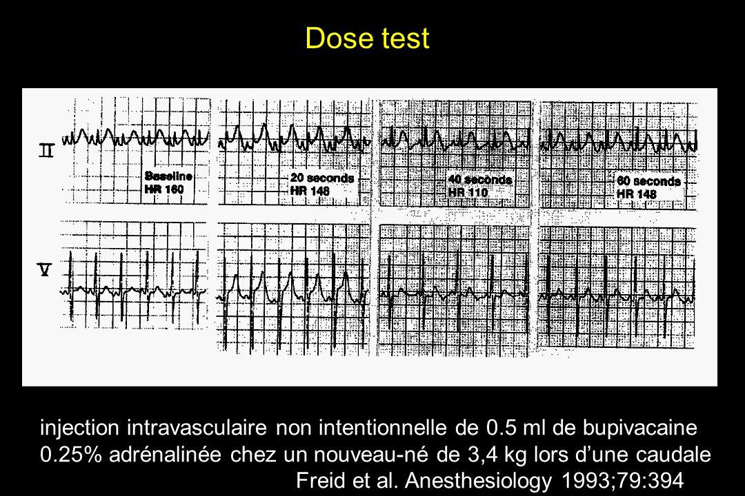 injection intravasculaire non intentionnelle de 0.5 ml de bupivacaine 0.25% adrénalinée chez un nouveau-né de 3,4 kg lors dune caudale Freid et al. An