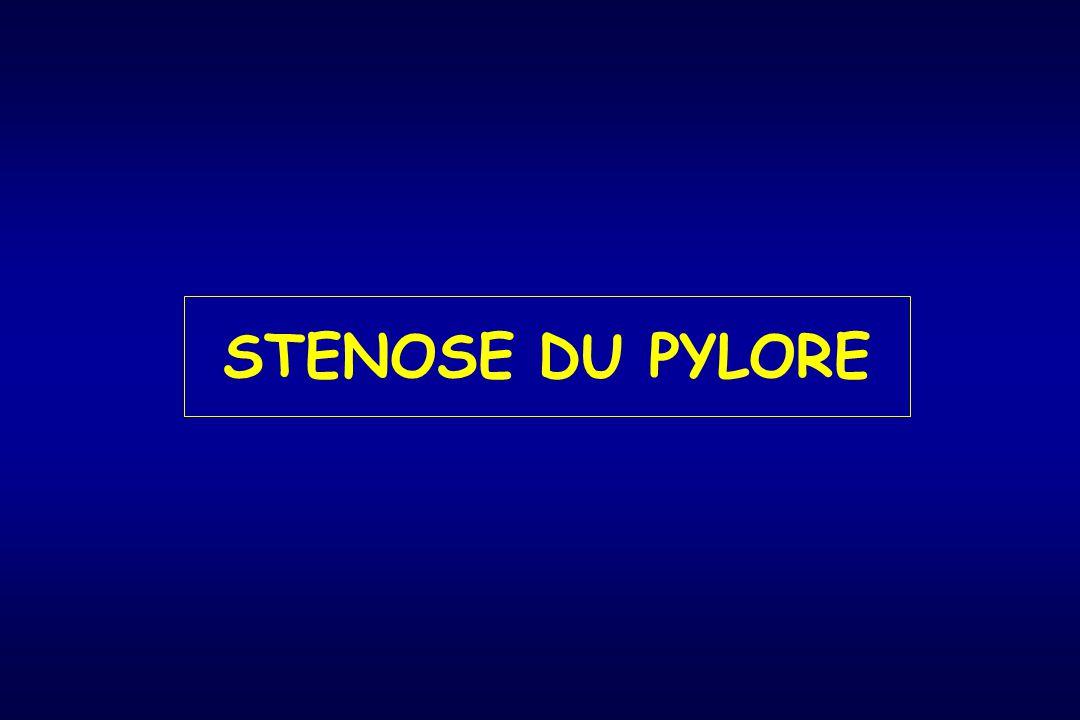 Sténose du pylore Hypertrophie concentrique de la musculeuse du pylore