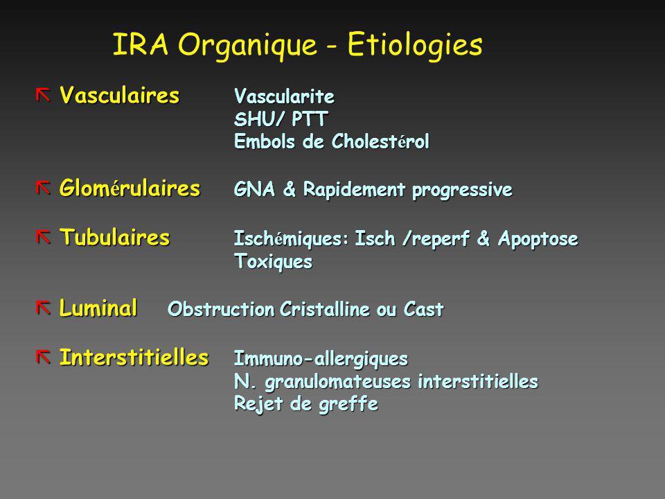 IRA Organique - Etiologies ãVasculaires Vascularite SHU/ PTT Embols de Cholest é rol Glom é rulaires GNA & Rapidement progressive Glom é rulaires GNA