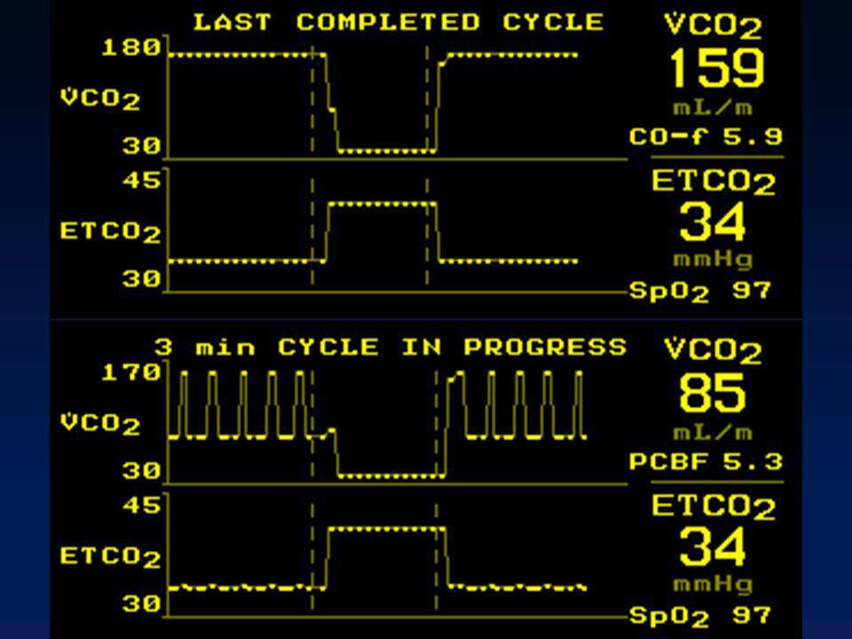 NICO: limites Mesure du DC moyen Mesure discontinue (toutes les 3 min.) Stabilité hémodynamique pour que le Principe de Fick soit valide Approximations +++ en cas de shunt Nécessite une AG avec curarisation