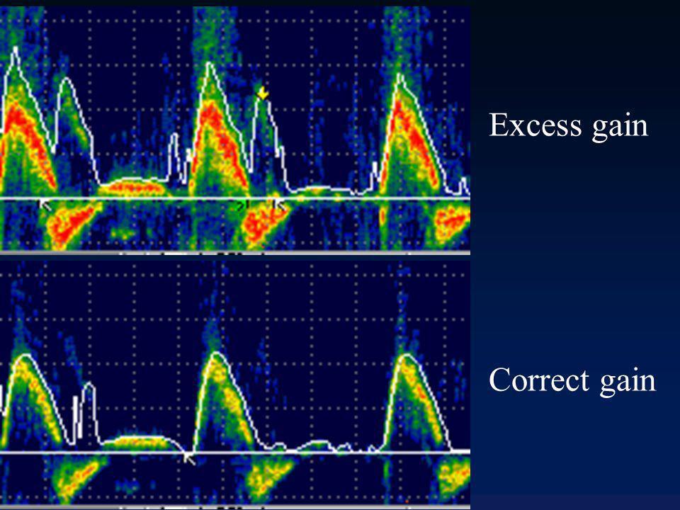 Réglage gain identique Profondeur identique Rotation sonde différente