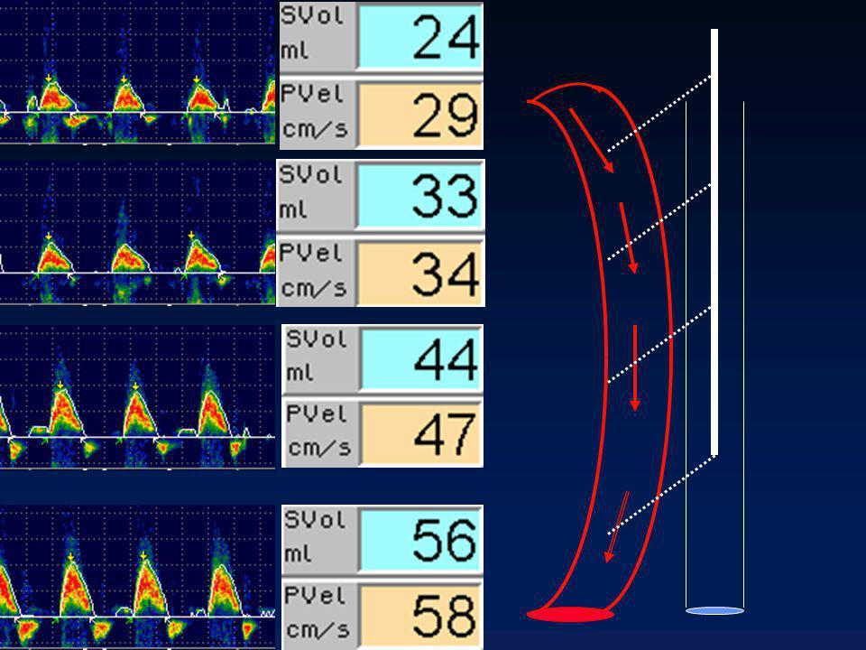 ECG V Ao (cm/sec) 100 0 Time(sec) ITV VTI D Ao = aortic diameter VTI SVA = VTI = Velocity x Time integral = (cm/sec) x sec = cm = stroke distance