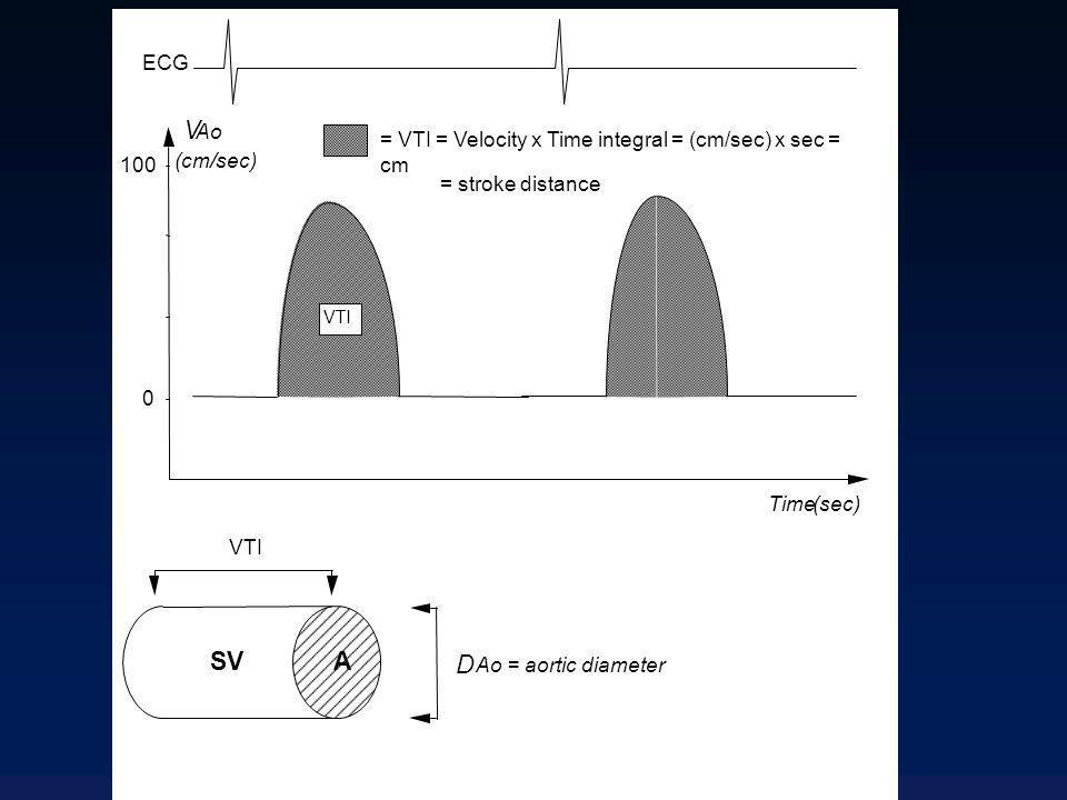 Doppler œsophagien: avantages Technique simple et peu invasive Apprentissage rapide bonne reproductibilité contrôle visuel de la qualité du signal mesure du DC battement / battement