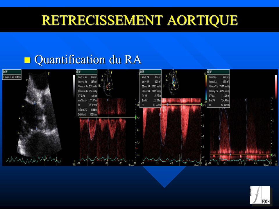 RETRECISSEMENT AORTIQUE Quantification du RA Quantification du RA