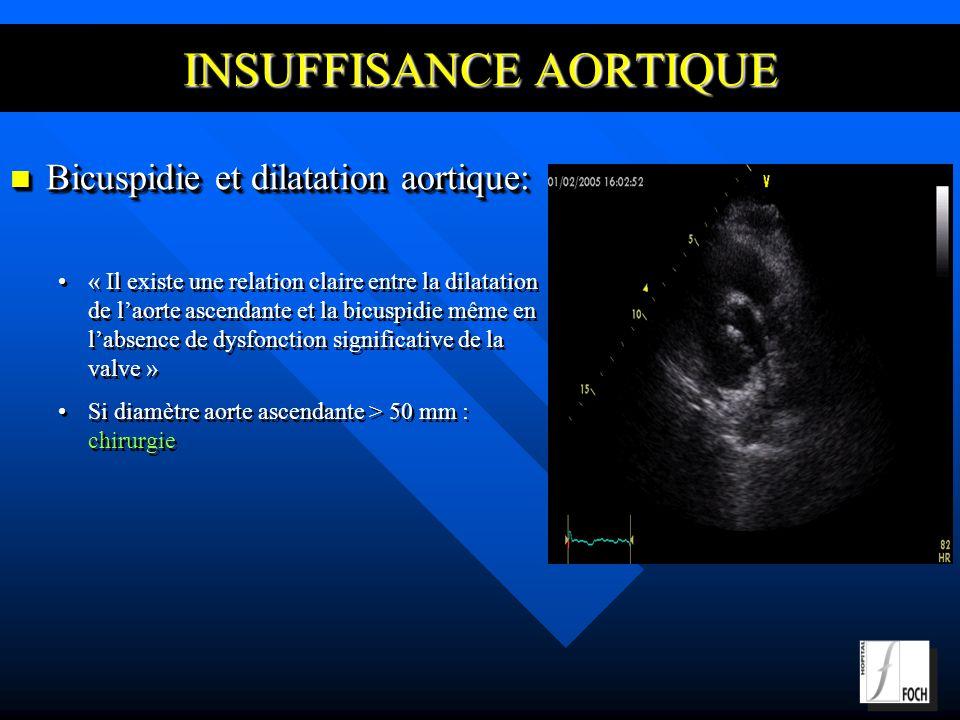 INSUFFISANCE AORTIQUE Bicuspidie et dilatation aortique: Bicuspidie et dilatation aortique: « Il existe une relation claire entre la dilatation de laorte ascendante et la bicuspidie même en labsence de dysfonction significative de la valve » Si diamètre aorte ascendante > 50 mm : chirurgie Bicuspidie et dilatation aortique: Bicuspidie et dilatation aortique: « Il existe une relation claire entre la dilatation de laorte ascendante et la bicuspidie même en labsence de dysfonction significative de la valve » Si diamètre aorte ascendante > 50 mm : chirurgie