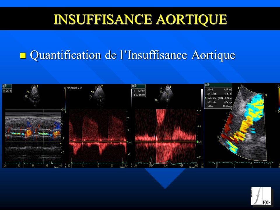INSUFFISANCE AORTIQUE Quantification de lInsuffisance Aortique Quantification de lInsuffisance Aortique