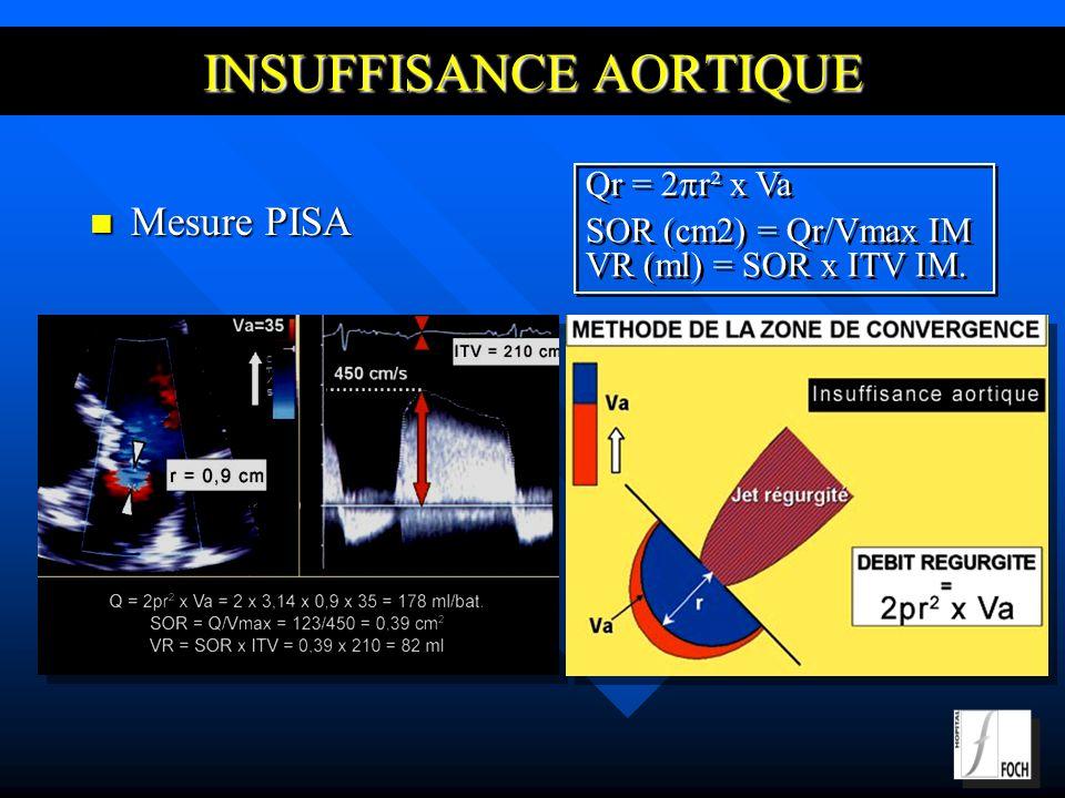 INSUFFISANCE AORTIQUE Mesure PISA Mesure PISA Qr = 2 r² x Va SOR (cm2) = Qr/Vmax IM VR (ml) = SOR x ITV IM.