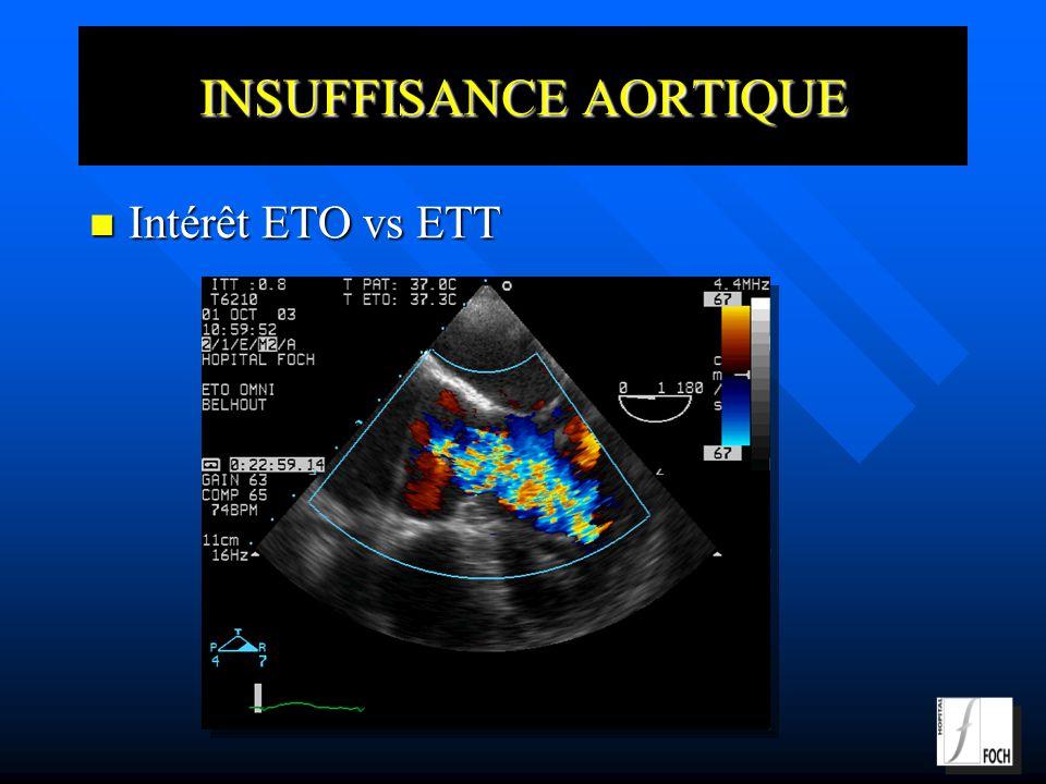 INSUFFISANCE AORTIQUE Intérêt ETO vs ETT Intérêt ETO vs ETT