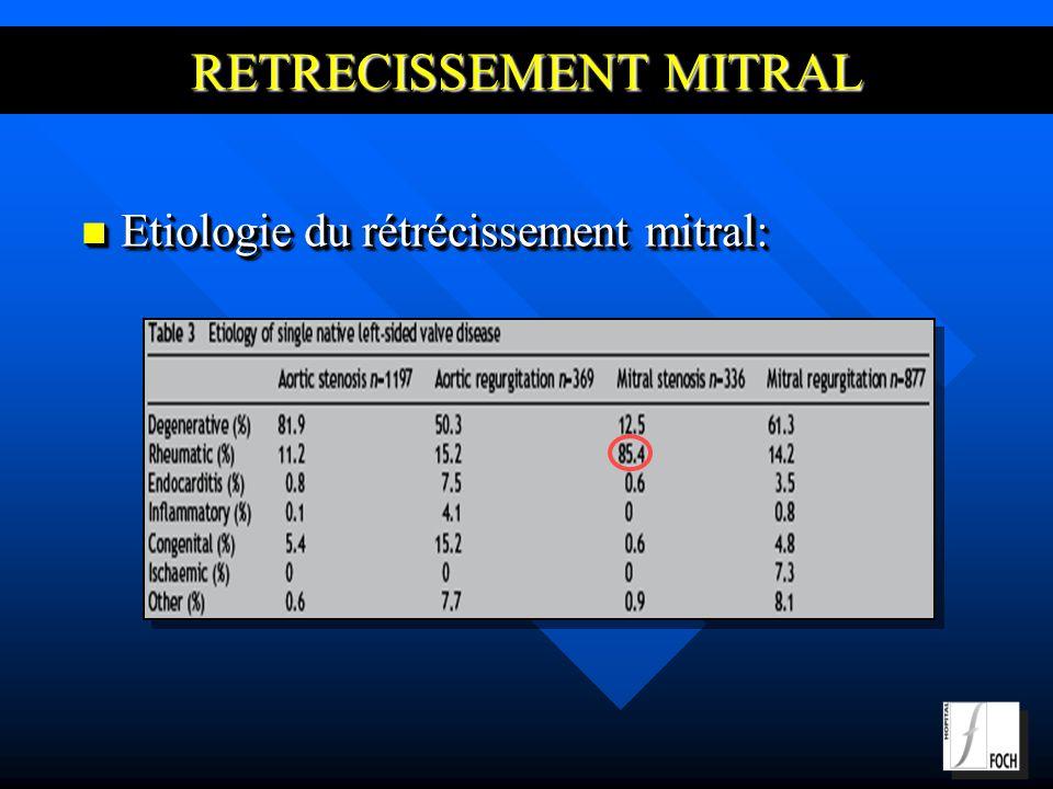 RETRECISSEMENT MITRAL Etiologie du rétrécissement mitral: Etiologie du rétrécissement mitral: