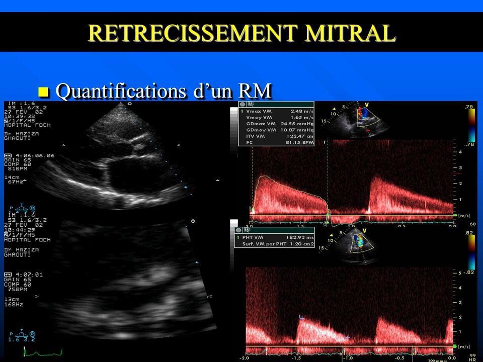RETRECISSEMENT MITRAL Quantifications dun RM Quantifications dun RM
