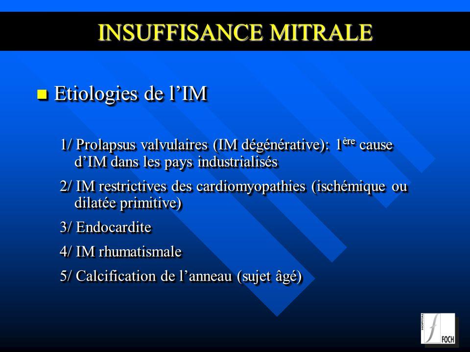 INSUFFISANCE MITRALE Etiologies de lIM Etiologies de lIM 1/ Prolapsus valvulaires (IM dégénérative): 1 ère cause dIM dans les pays industrialisés 2/ IM restrictives des cardiomyopathies (ischémique ou dilatée primitive) 3/ Endocardite 4/ IM rhumatismale 5/ Calcification de lanneau (sujet âgé) Etiologies de lIM Etiologies de lIM 1/ Prolapsus valvulaires (IM dégénérative): 1 ère cause dIM dans les pays industrialisés 2/ IM restrictives des cardiomyopathies (ischémique ou dilatée primitive) 3/ Endocardite 4/ IM rhumatismale 5/ Calcification de lanneau (sujet âgé)