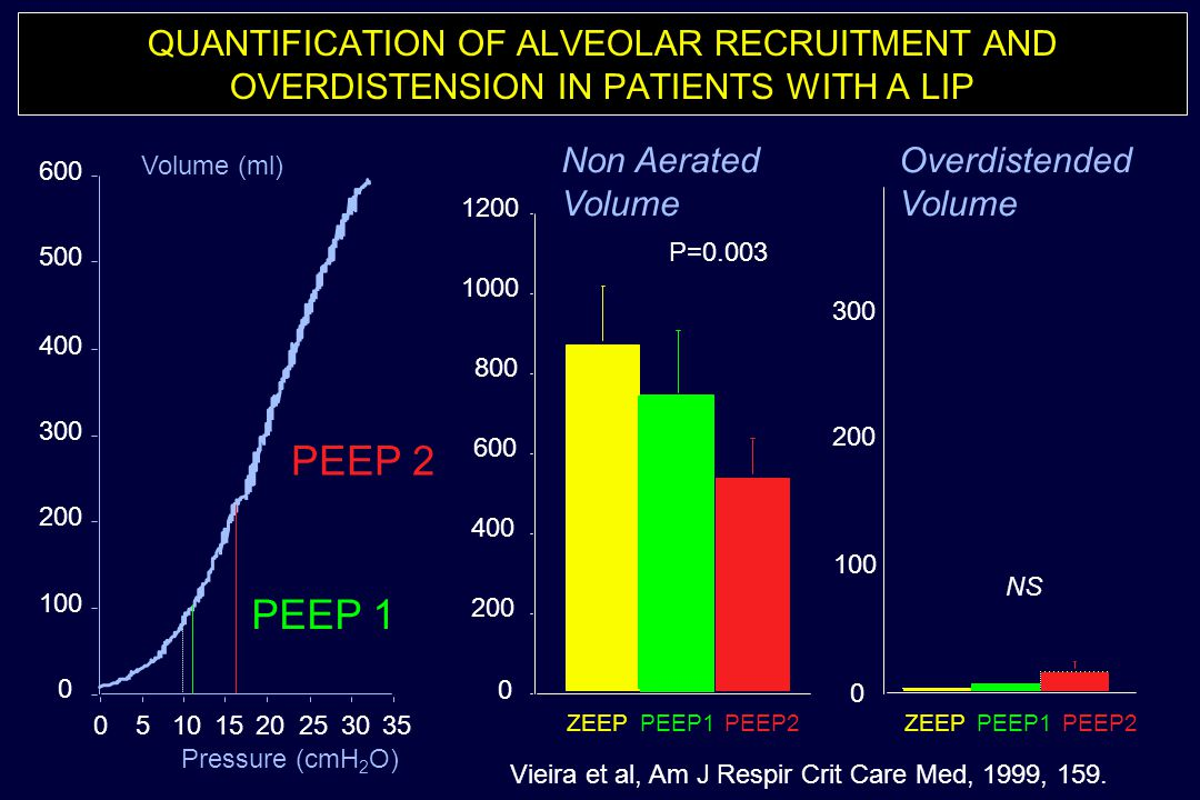 QUANTIFICATION OF ALVEOLAR RECRUITMENT AND OVERDISTENSION IN PATIENTS WITH A LIP 0 100 200 300 400 500 600 05101520253035 Volume (ml) Pressure (cmH 2
