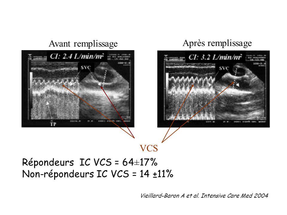 VCS Répondeurs IC VCS = 64±17% Non-répondeurs IC VCS = 14 ±11% Avant remplissage Après remplissage Vieillard-Baron A et al. Intensive Care Med 2004