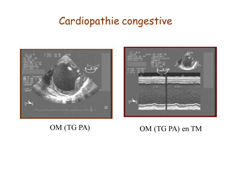 Cardiopathie congestive OM (TG PA) OM (TG PA) en TM