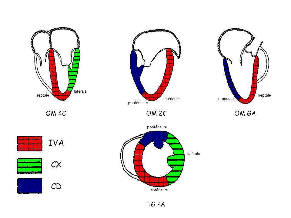 OM 4COM 2COM GA TG PA IVA CX CD postérieure antérieure latérale postérieure antérieure latérale septale inférieure