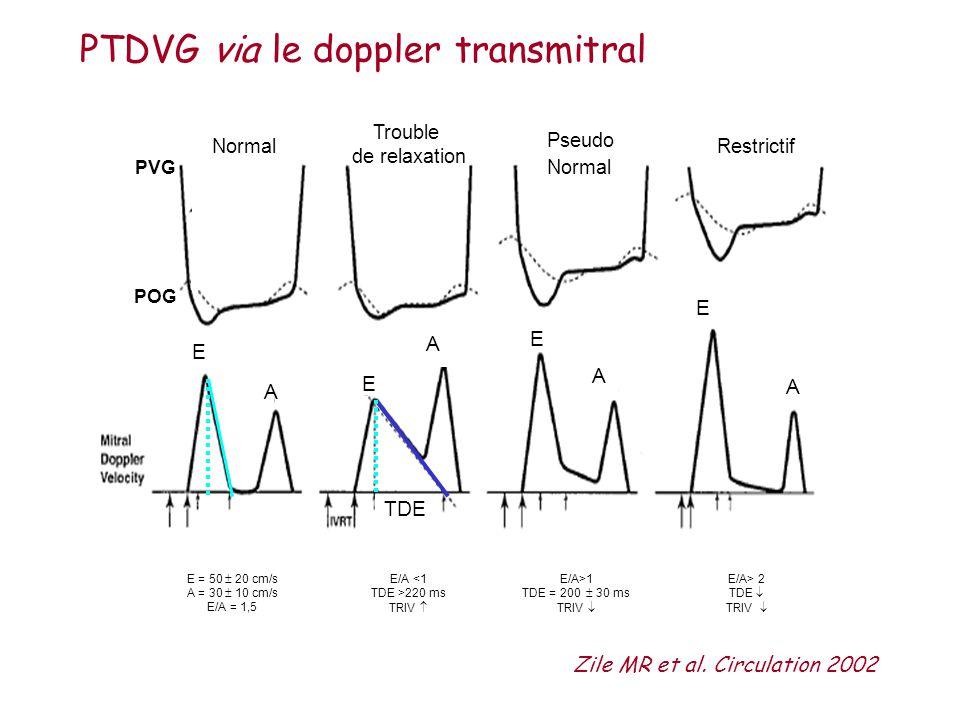 PVG Normal TDE E E E E A A A A Trouble de relaxation Restrictif Pseudo Normal E = 50 20 cm/s A = 30 10 cm/s E/A = 1,5 POG Zile MR et al. Circulation 2
