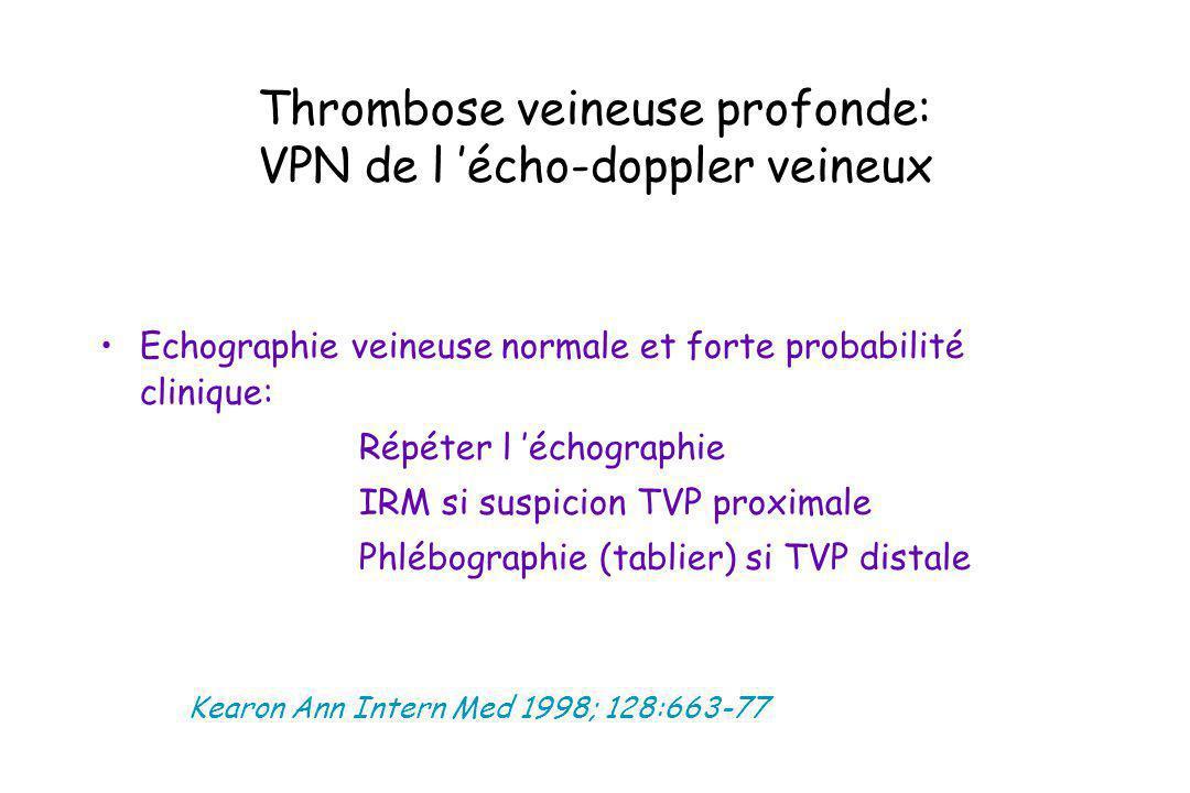 Thrombose veineuse profonde: VPN de l écho-doppler veineux Echographie veineuse normale et forte probabilité clinique: ä Répéter l échographie ä IRM s