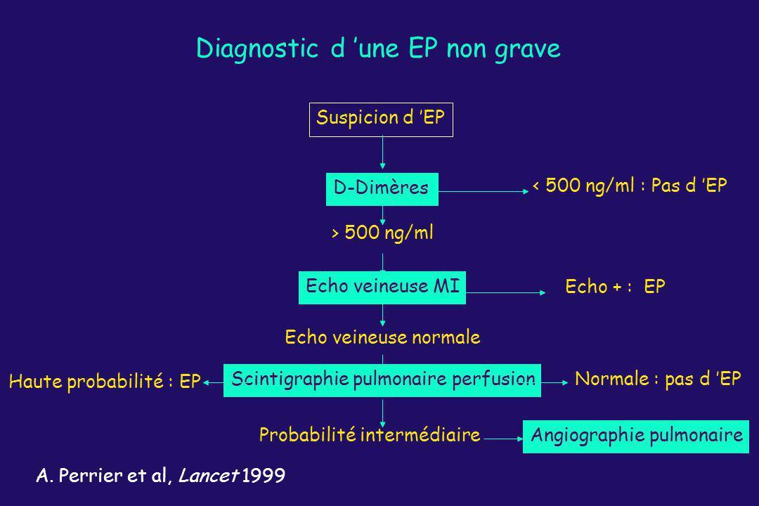 Diagnostic d une EP non grave Suspicion d EP D-Dimères < 500 ng/ml : Pas d EP Echo veineuse MI Echo + : EP > 500 ng/ml Echo veineuse normale Scintigra