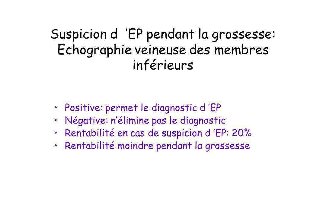 Suspicion d EP pendant la grossesse: Echographie veineuse des membres inférieurs Positive: permet le diagnostic d EP Négative: nélimine pas le diagnos