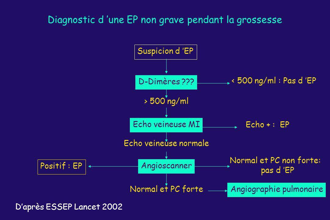 Diagnostic d une EP non grave pendant la grossesse Suspicion d EP D-Dimères ??? < 500 ng/ml : Pas d EP Echo veineuse MI Echo + : EP > 500 ng/ml Echo v