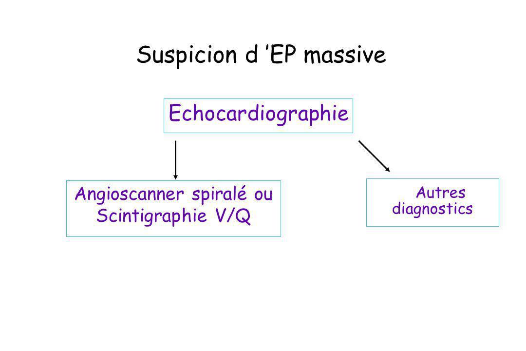 Suspicion d EP massive Echocardiographie Autres diagnostics Angioscanner spiralé ou Scintigraphie V/Q