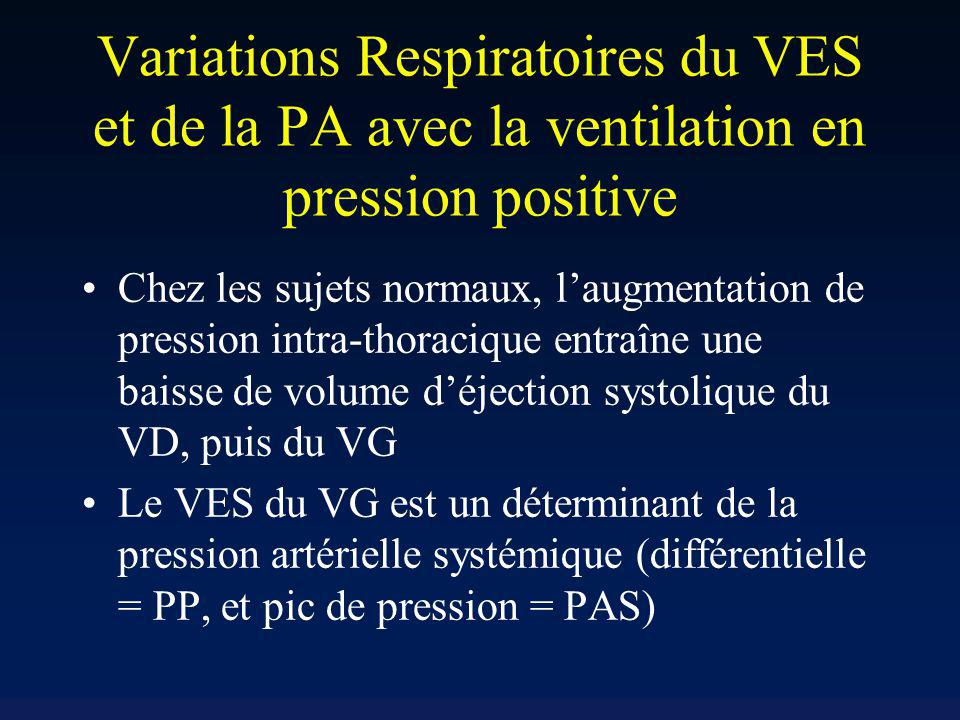 Variations Respiratoires du VES et de la PA avec la ventilation en pression positive Chez les sujets normaux, laugmentation de pression intra-thoraciq