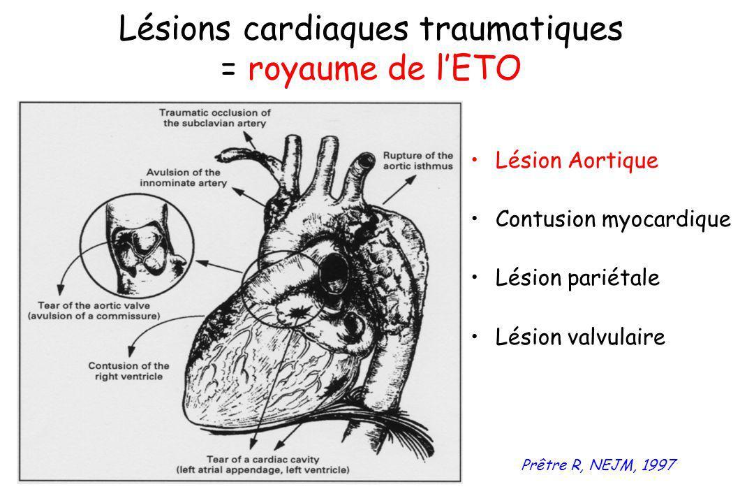 Lésion Aortique Contusion myocardique Lésion pariétale Lésion valvulaire Lésions cardiaques traumatiques = royaume de lETO Prêtre R, NEJM, 1997