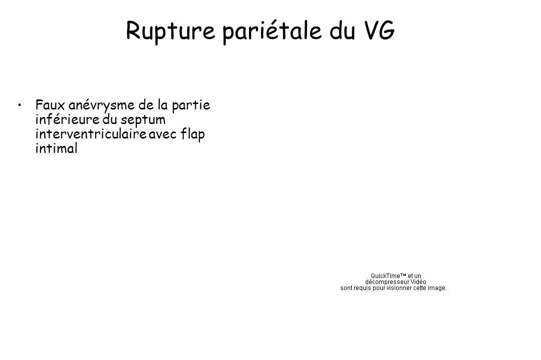 Rupture pariétale du VG Faux anévrysme de la partie inférieure du septum interventriculaire avec flap intimal