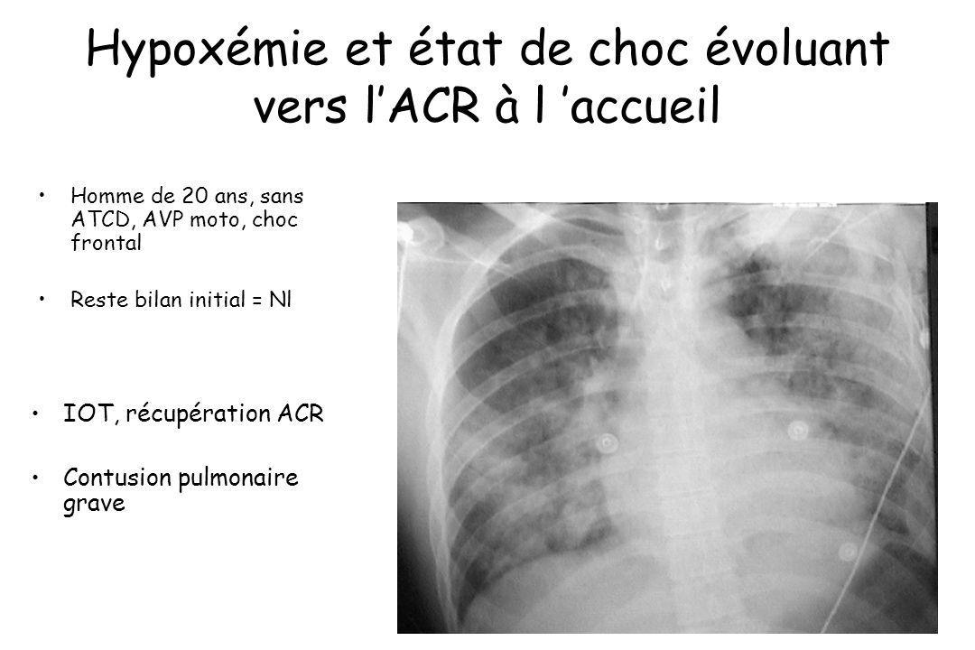 Hypoxémie et état de choc évoluant vers lACR à l accueil Homme de 20 ans, sans ATCD, AVP moto, choc frontal Reste bilan initial = Nl IOT, récupération