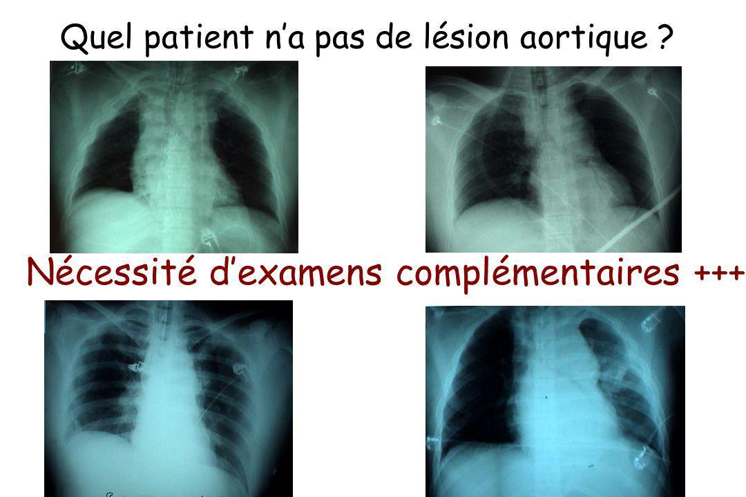Quel patient na pas de lésion aortique ? Nécessité dexamens complémentaires +++