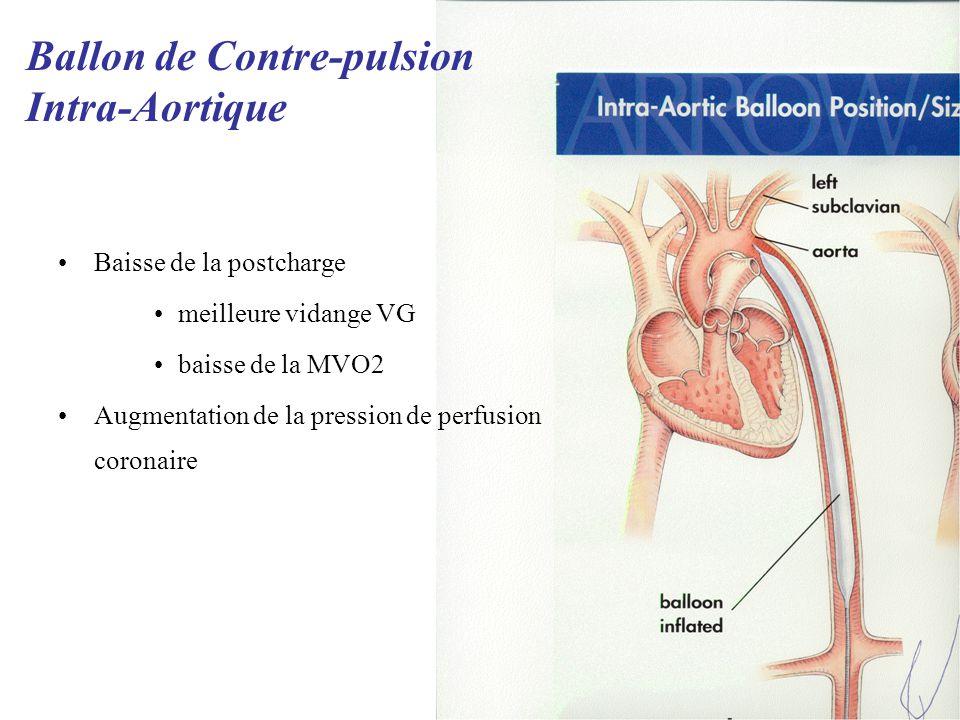 Baisse de la postcharge meilleure vidange VG baisse de la MVO2 Augmentation de la pression de perfusion coronaire Ballon de Contre-pulsion Intra-Aortique