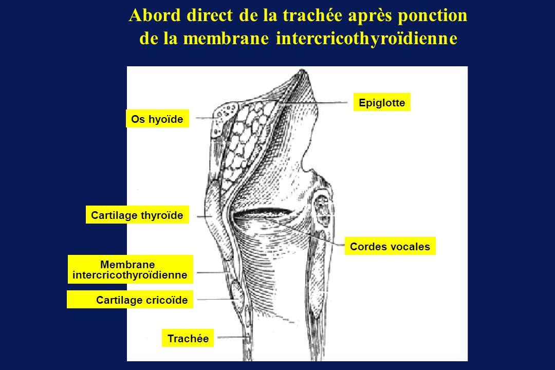 Os hyoïde Cartilage thyroïde Membrane intercricothyroïdienne Cartilage cricoïde Trachée Cordes vocales Epiglotte Abord direct de la trachée après ponc