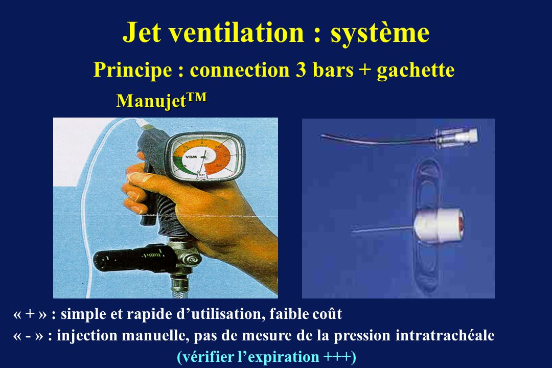 Principe : connection 3 bars + gachette Jet ventilation : système Manujet TM (vérifier lexpiration +++) « + » : simple et rapide dutilisation, faible coût « - » : injection manuelle, pas de mesure de la pression intratrachéale