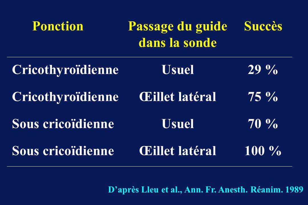 PonctionPassage du guideSuccès dans la sonde CricothyroïdienneUsuel 29 % CricothyroïdienneŒillet latéral75 % Sous cricoïdienneUsuel70 % Sous cricoïdienneŒillet latéral100 % Daprès Lleu et al., Ann.