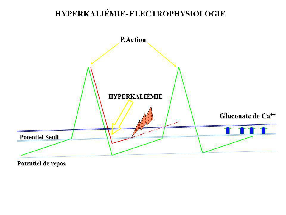 Gluconate de Ca ++ P.Action Potentiel Seuil Potentiel de repos HYPERKALIÉMIE HYPERKALIÉMIE- ELECTROPHYSIOLOGIE