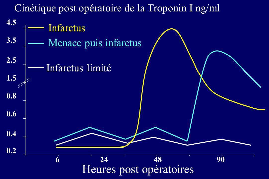 0.2 0.4 0.6 0.8 1.5 2.5 3.5 4.5 6 24 4890 Heures post opératoires Infarctus Menace puis infarctus Infarctus limité Cinétique post opératoire de la Tro