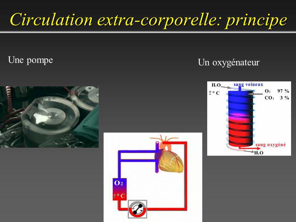 – Permettre la chirurgie – Suppléance circulatoire – Suppléance respiratoire – Modulation thermique Circulation extra-corporelle: buts
