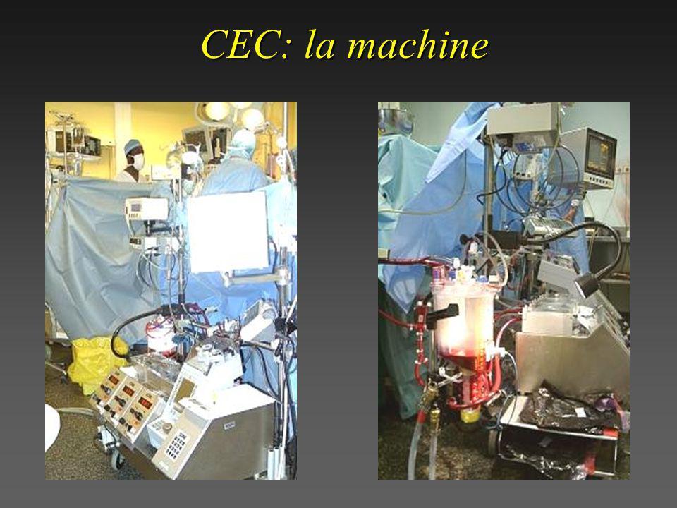 CEC: retour veineux et débit de pompe Retour veineux (-> Q pompe) Résist. R. Vx