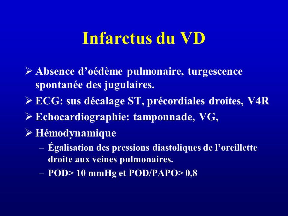 Infarctus du VD Absence doédème pulmonaire, turgescence spontanée des jugulaires. ECG: sus décalage ST, précordiales droites, V4R Echocardiographie: t