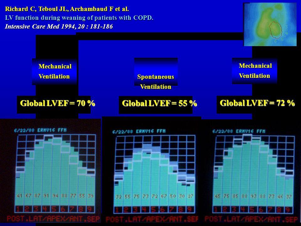 Global LVEF = 70 % Mechanical MechanicalVentilation Richard C, Teboul JL, Archambaud F et al.