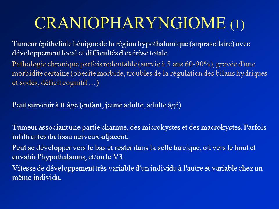 CRANIOPHARYNGIOME (1) Tumeur épitheliale bénigne de la région hypothalamique (suprasellaire) avec développement local et difficultés d'exérèse totale