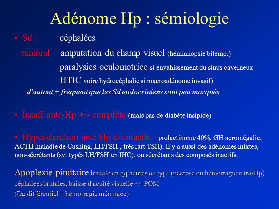 Adénome Hp : sémiologie Sd : céphalées tumoral amputation du champ visuel (hémianopsie bitemp.) paralysies oculomotrice si envahissement du sinus cave