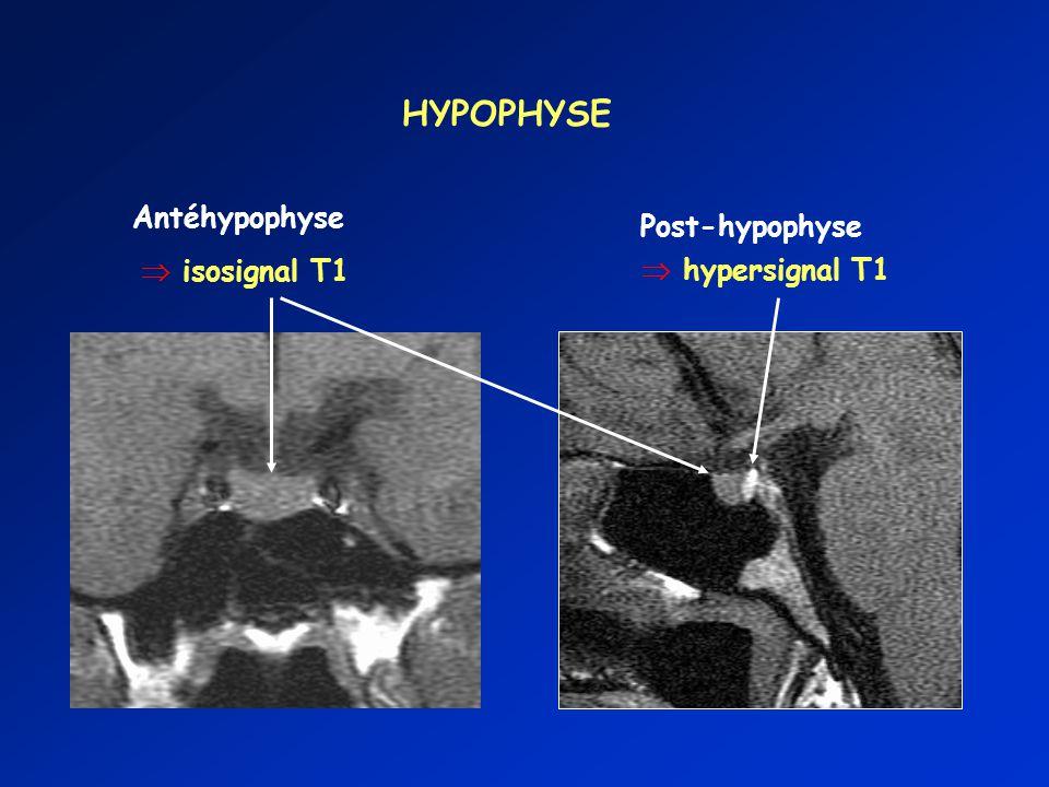 HYPOPHYSE Antéhypophyse isosignal T1 Post-hypophyse hypersignal T1