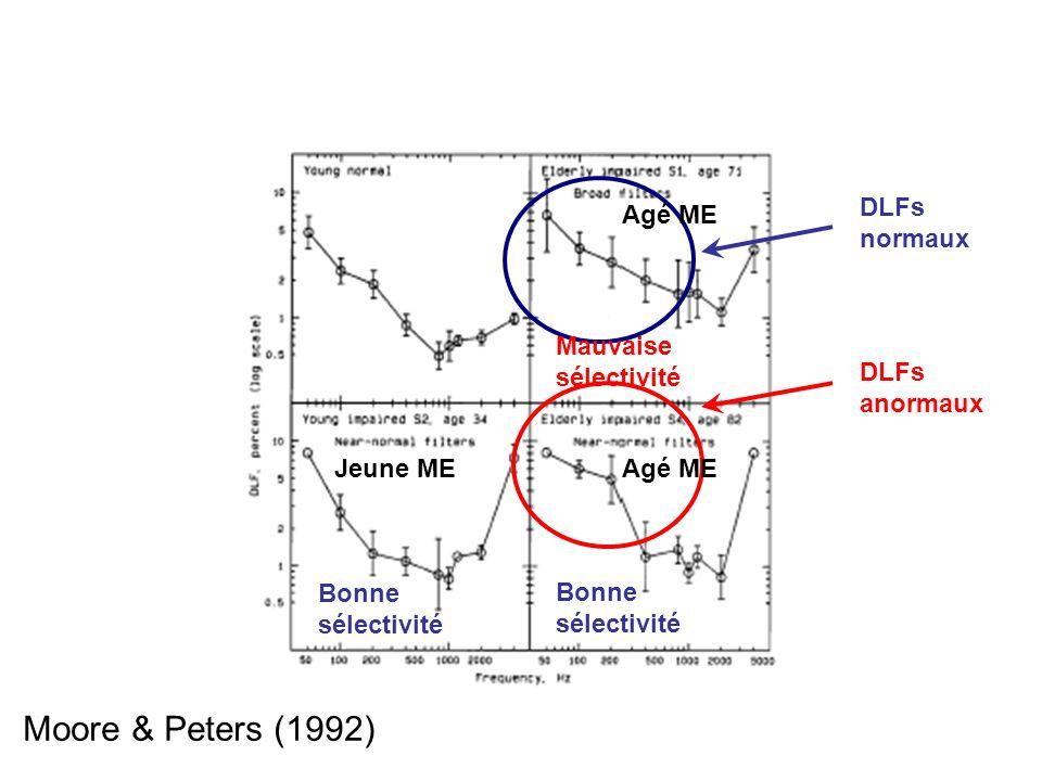 Mauvaise sélectivité Bonne sélectivité Agé ME Jeune ME DLFs normaux DLFs anormaux Moore & Peters (1992)