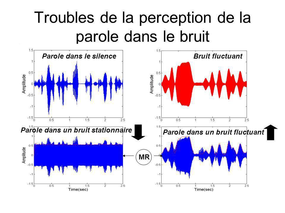 Troubles de la perception de la parole dans le bruit Parole dans le silence Parole dans un bruit stationnaire Bruit fluctuant Parole dans un bruit fluctuant MR
