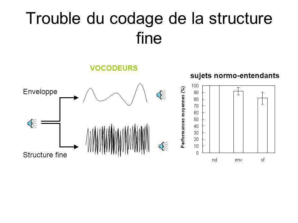 Trouble du codage de la structure fine VOCODEURS Enveloppe Structure fine sujets normo-entendants