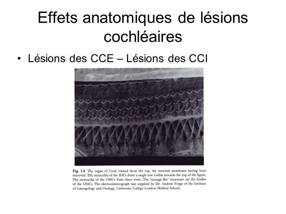 Effets anatomiques de lésions cochléaires Lésions des CCE – Lésions des CCI